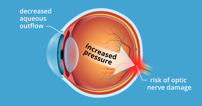 illustration of ocular hypertension condition