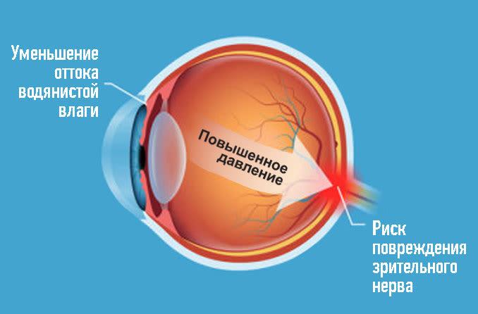 Диаграмма состояния глазной гипертензии