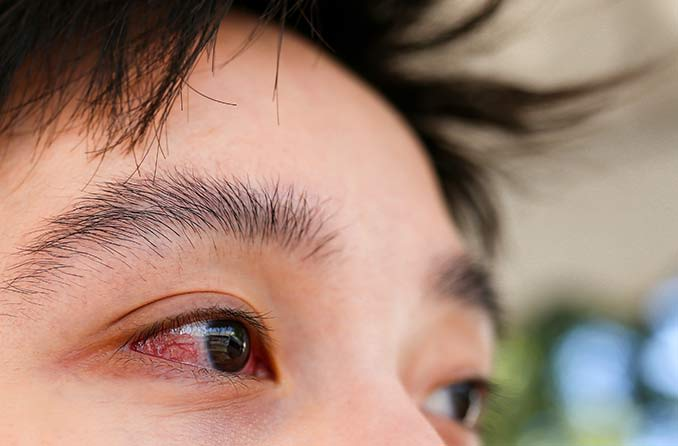 一個人患有結膜炎(粉紅色的眼睛)的特寫鏡頭 Yīgèrén huàn yǒu jiémóyán (fěnhóng sè de yǎnjīng) de tèxiě jìngtóu