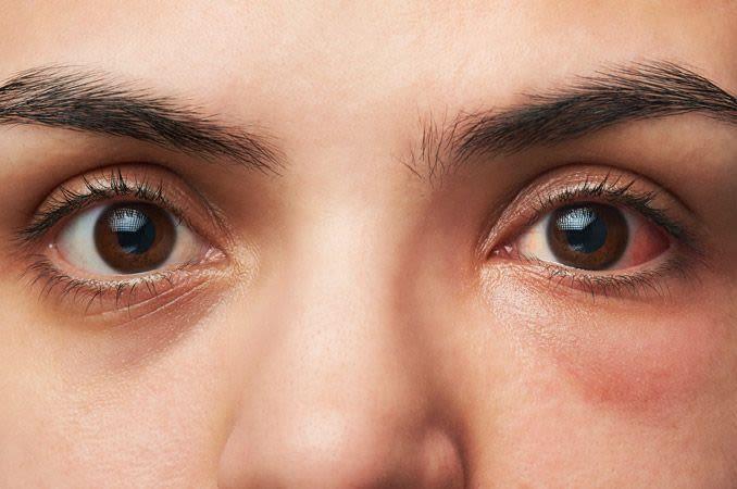Gros plan d'une femme atteinte de conjonctivite (œil rose)