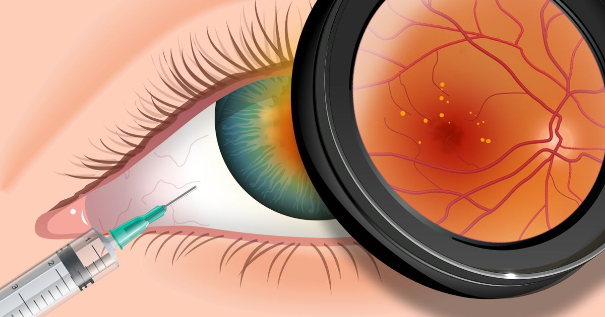 eye injection of lucentis or avastin