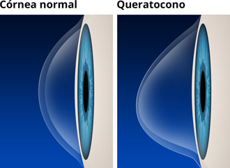 Córnea normal vs queratocono
