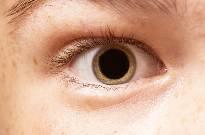 What Not To Do After Eye Dilation