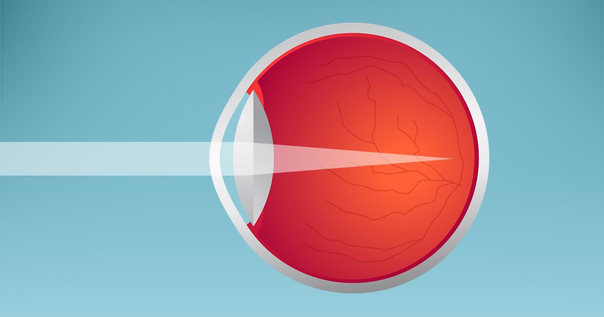 Darstellung der Myopie, die Kurzsichtigkeit verursacht