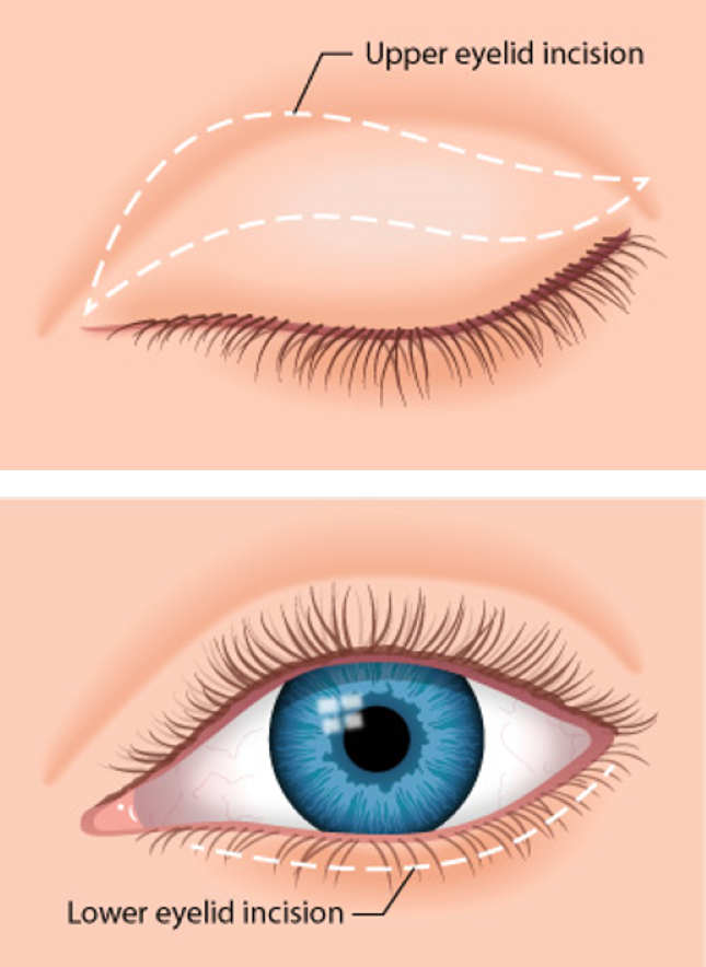 Eyelid Surgery Blepharoplasty Or Eye Lift For A Youthful Look