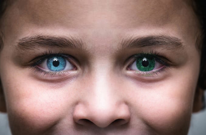 Child with heterochromia has one blue eye and one green eye