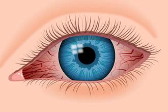 Man rote augen warum bekommt beim kiffen Kiffer Augen