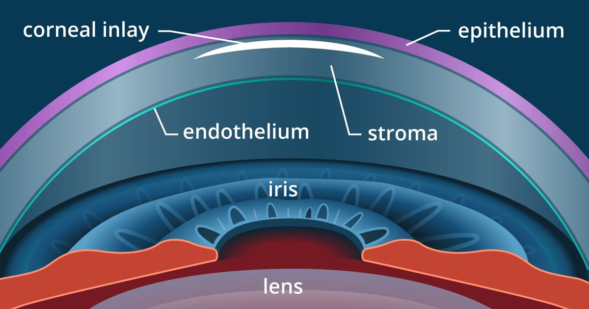 Presbyopia Surgery