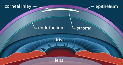 eye with corneal inlay for presbyopia
