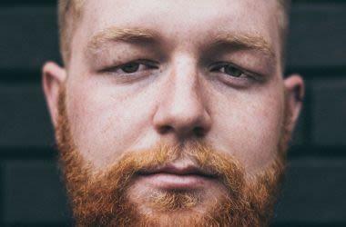 Man with swollen eyelids