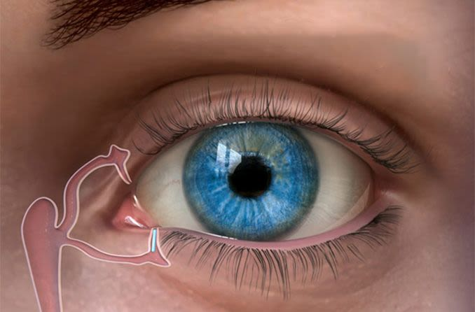 illustration of punctal plug in an eye