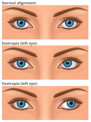 illustration of strabismus