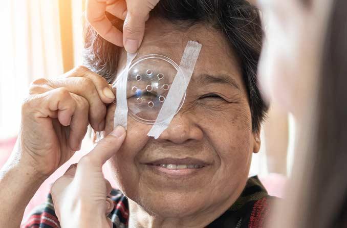 白内障手術から回復している女性