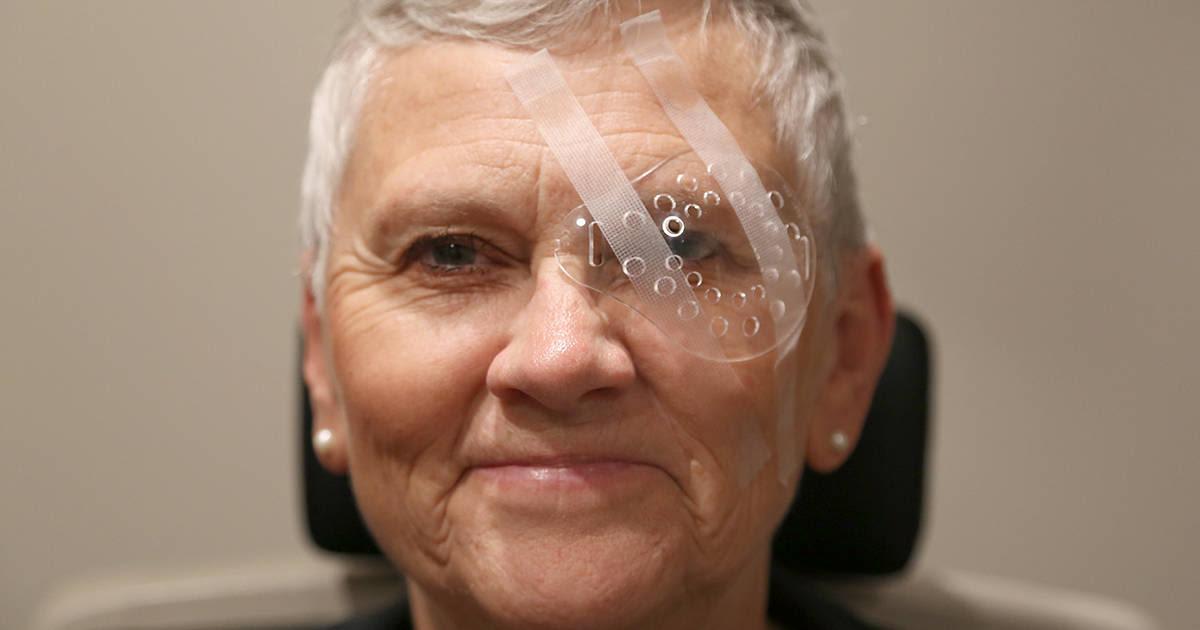 Uma mulher se recuperando de uma cirurgia de catarata.