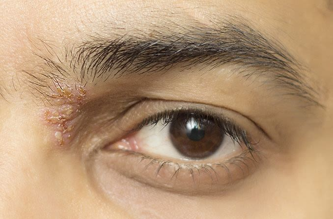Closeup of a man with eye shingles