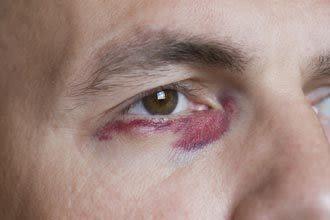 como ocultar un morado en el ojo