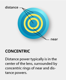 How Multifocal Contact Lenses Work 1