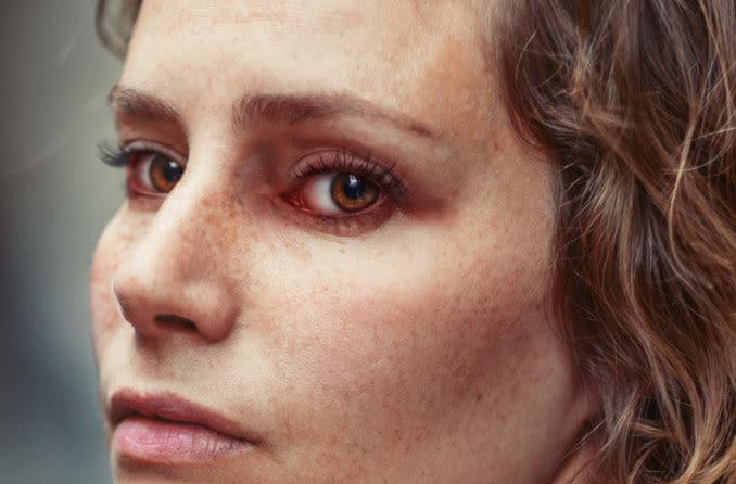Blefaritis (Inflamación del párpado)