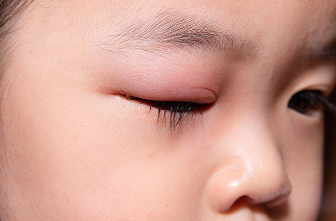 赤く腫れたまぶたの子供