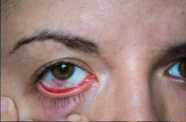 Kırmızı göz kapakları olan kadın
