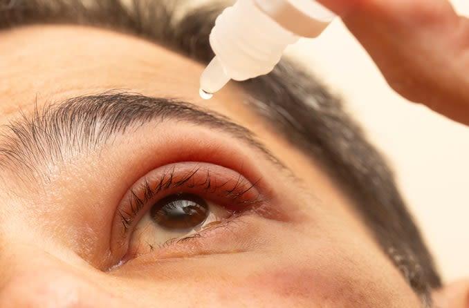 A man with a stye puts eye drops into his eye
