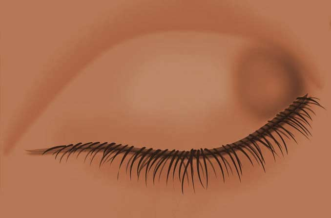 Chalazion: Causes and treatment of eyelid bumps