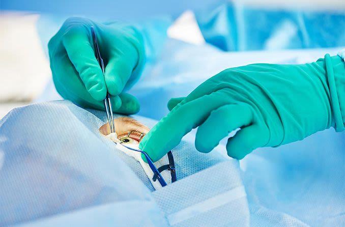 eye surgeon performing surgery
