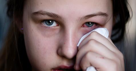 Mädchen mit Bindehautentzündung