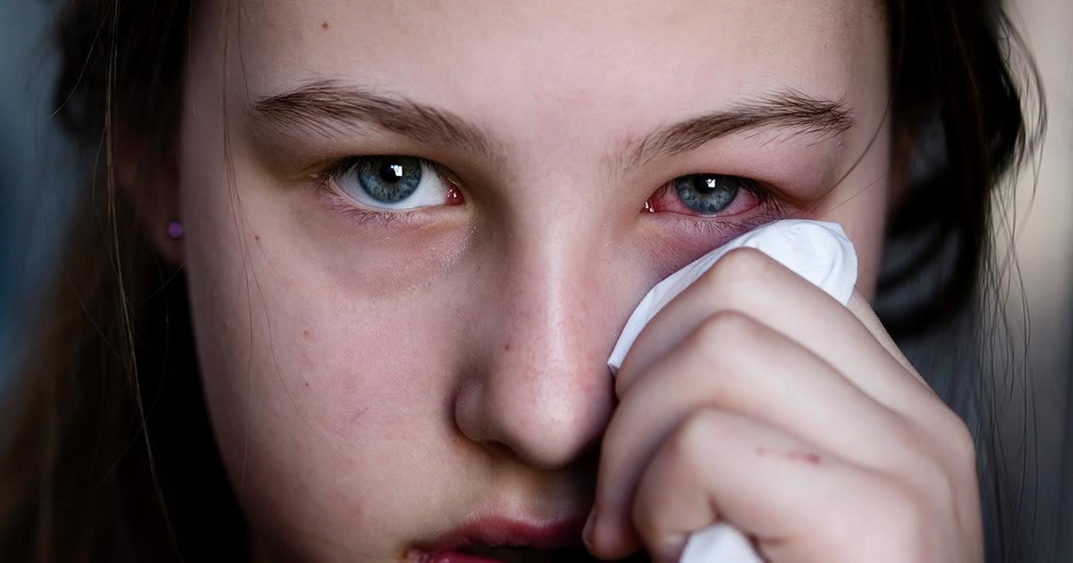 Ragazza con occhio rosa (congiuntivite)