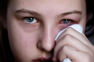 девочка с конъюнктивитом