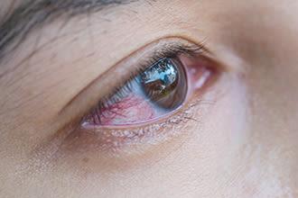 ウイルス 目やに コロナ 目やにが白い、ネバネバする…原因は?自分でできる対処法を紹介!