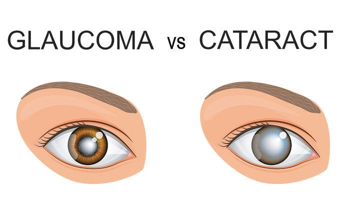 side by side illustrated comparison of an eye with glaucoma vs cataract