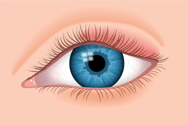 Swollen eyelids: Causes and treatment | All About Vision