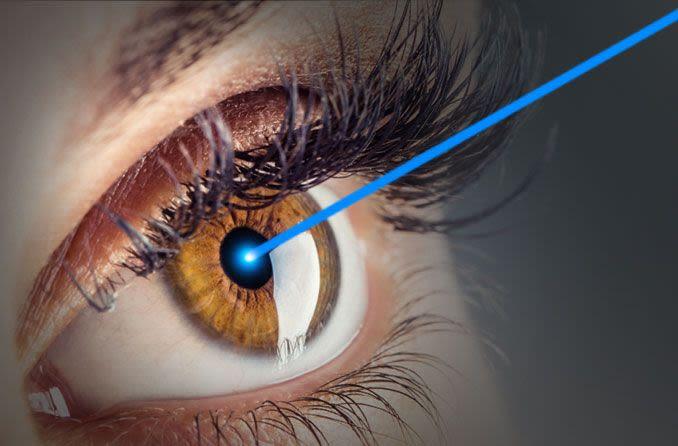 الشخص الذي يتلقى علاجات الليزك للعين.