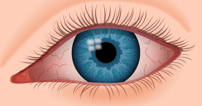 0e0b18982a2 Dry eye syndrome is caused by a chronic lack of sufficient lubrication and  moisture on the surface of the eye.