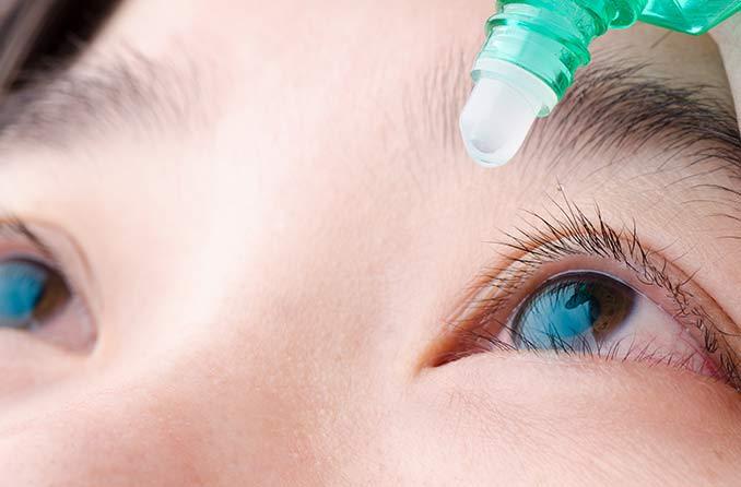 乾燥した赤い炎症を起こした目に点眼薬を使用している女性