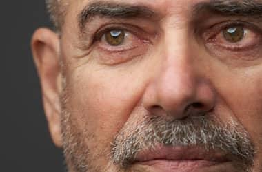 رجل بعيون جافة وحمراء متهيجة