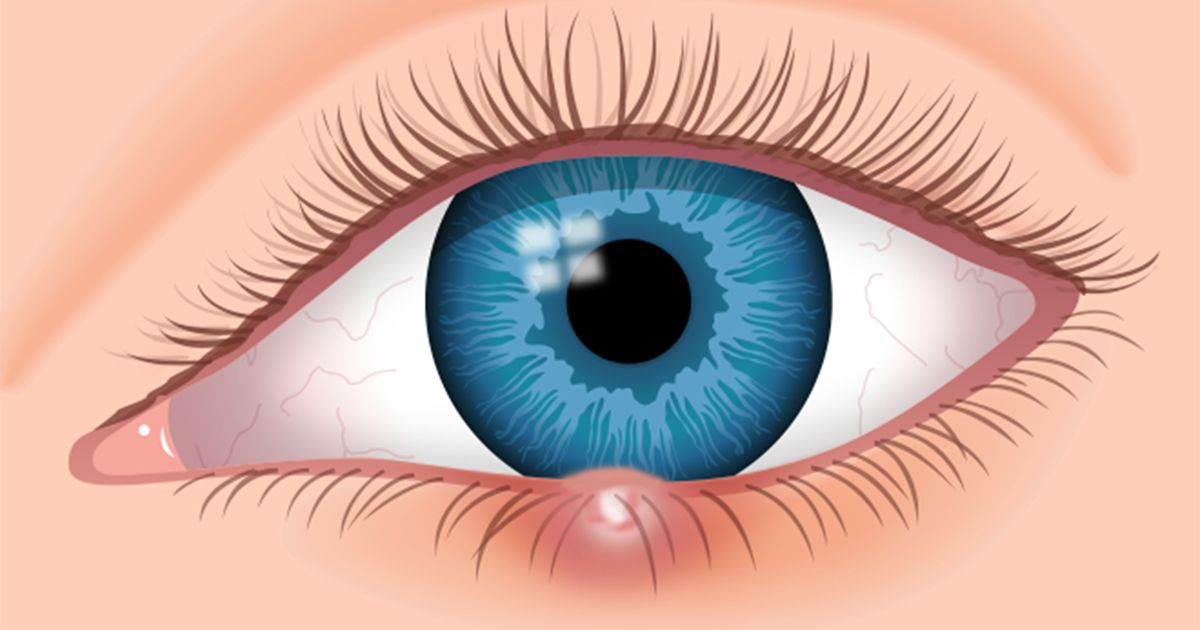 Eye stye: Causes, symptoms and treatment | All About Vision