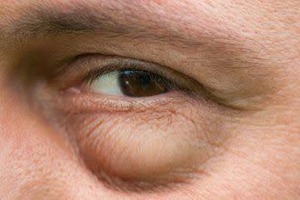 الانتفاخ تحت العينين الأسباب وكيفية التخلص منه