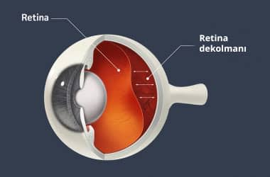 retina dekolmanı diyagramı
