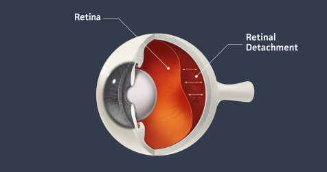 retina detachment diagram