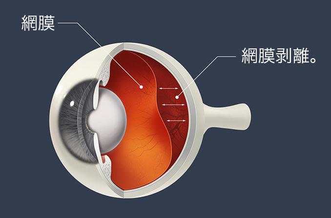 網膜剥離図