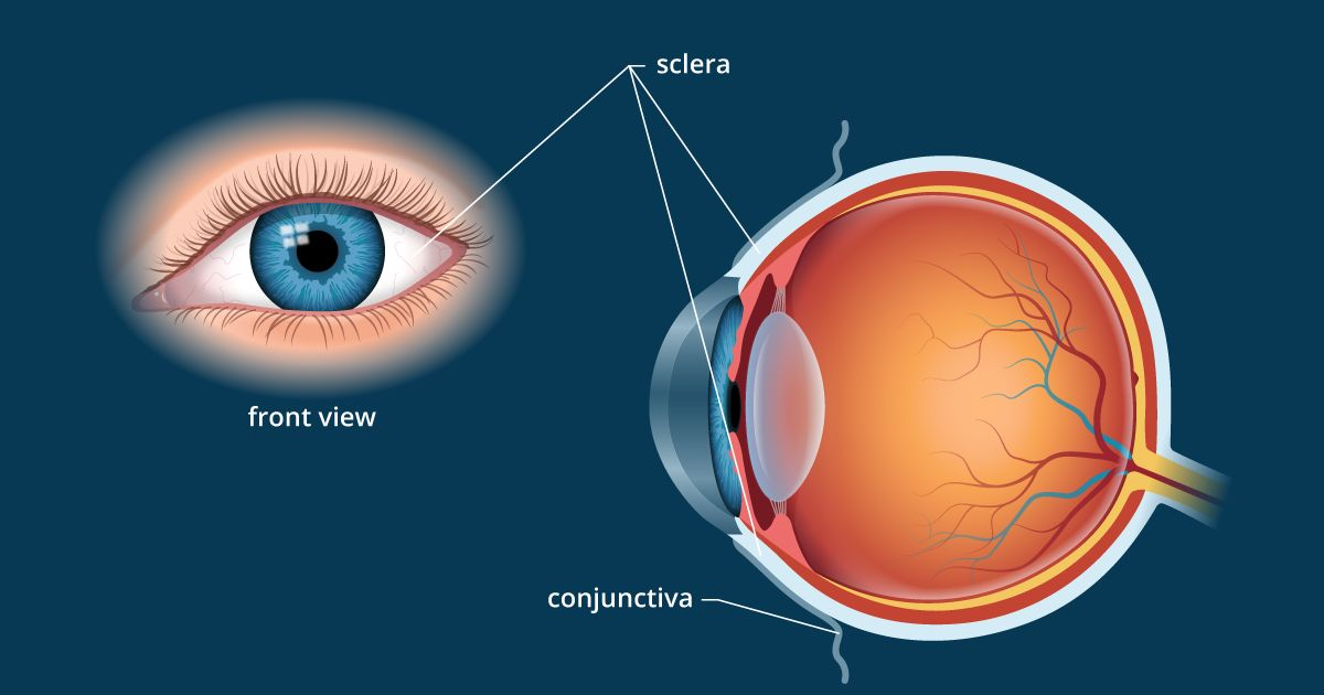 sclera | white of the eye - definition and detailed illustration  all about vision