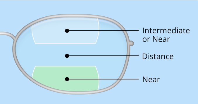 ff76d8b48446 illustration of bifocal and trifocal lenses
