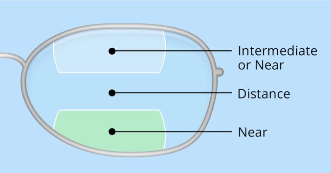 0aef03d2c1b illustration of bifocal and trifocal lenses