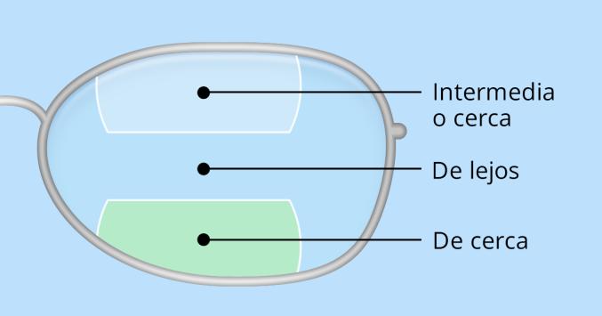 ddeb0bde90 Ilustración de lentes bifocales y trifocales.