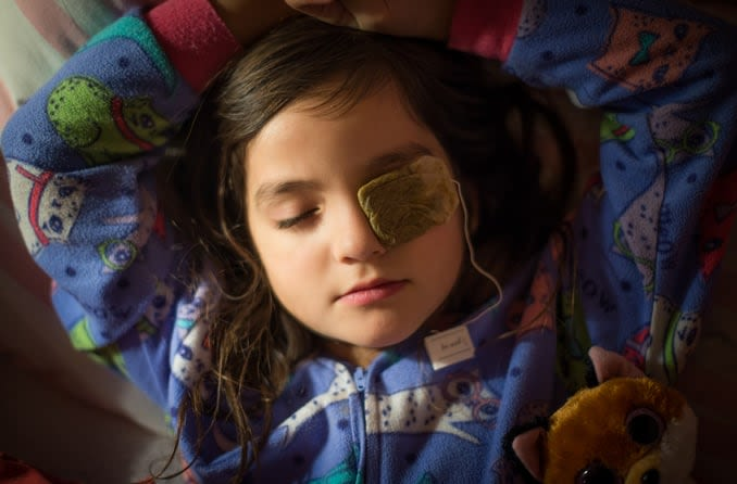 A young brunette girl in pajamas lies back with a warm tea bag over her eye stye.