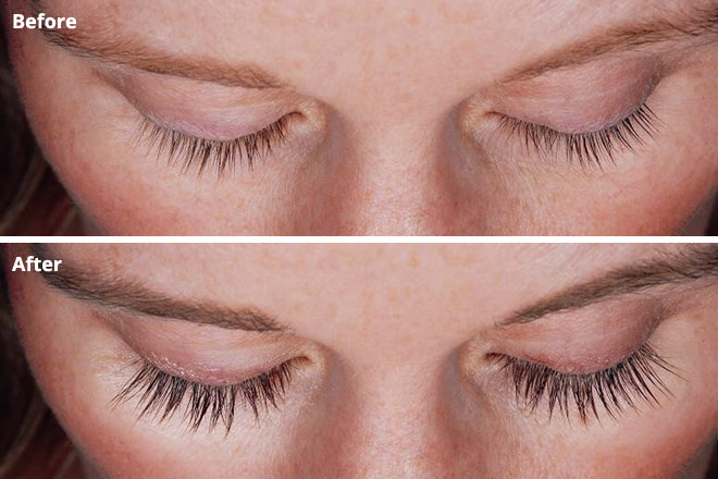 23f370837dc before and after Latisse treatment for longer lashes