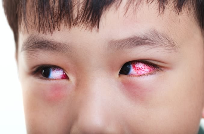 Young boy with red, inflamed eye