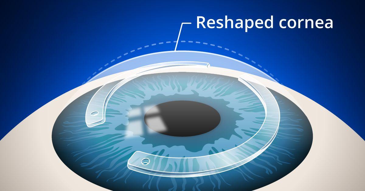 intacs corneal inserts procedure